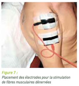 Electrotherapie_6